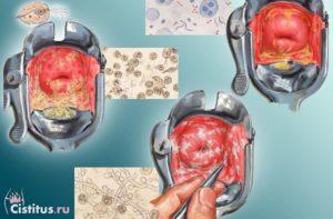 Кровяные выделения и струп после конизации шейки