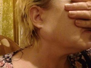Небольшая опухоль вокруг правого уха и возле челюсти