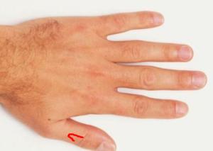 В большом пальце руки ощучение что бьет током