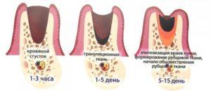 Запах из лунки после удаления зуба