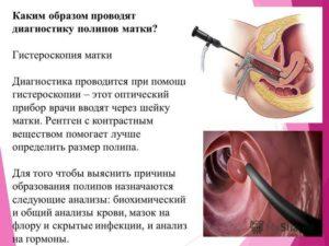 Результат ПГИ после удаления полипа ц. к