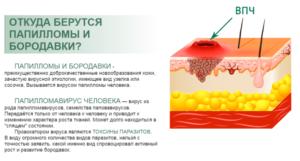 Лечение ВПЧ 16