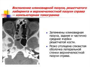 Инфильтративно-воспалительные изменения слизистой обеих верхнечелестной пазухи носа