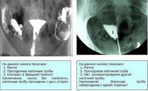 Задержка после проверки проходимости маточных труб
