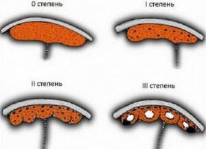 3 степень зрелости плаценты на 34 неделе беременности