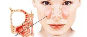 Боль между носом и верхней губой, насморк
