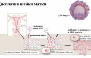 Дисплазия и ВПЧ 16 типа
