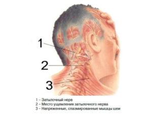 Напряжение и прострелы в голове