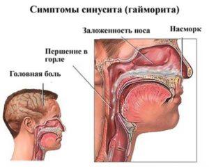 Ощущение заложенности горла