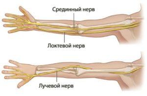 Простужен нерв левой руки