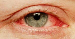Красный глаз и опух. Порвалась линза в глазу