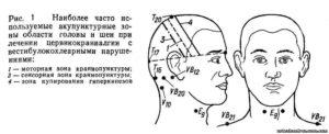 Онемение правой стороны лица и руки