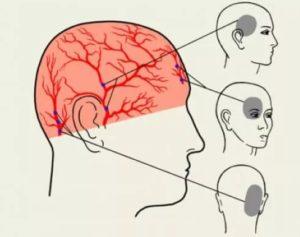 Давящая боль в голове над ухом