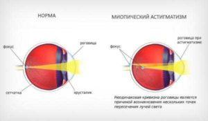 Миопический астигматизм и роды