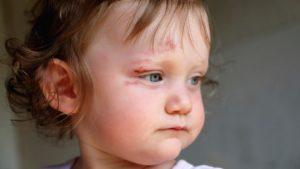 Ребенок ударился бровью