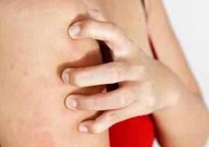 Проблемы с пищеварением, кожный зуд