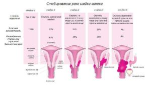 Рак шейки матки Ca Colli uteri T3N0M0