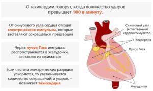 Тахикардия и температура