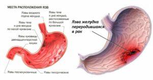 Гастрит, язва или рак