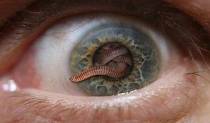 Червячки в глазах