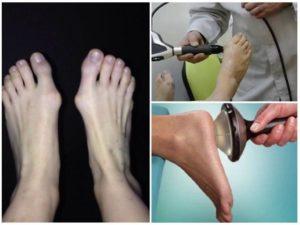 Бьёт током в пальцах стопы