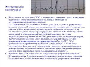 Экстрасистолы и пароксизм, синусовая аритмия, Невроз и ВСД