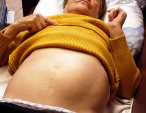 Увеличена селезенки при беременности