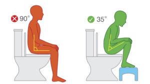 Не могу сходить в туалет даже при мягком стуле