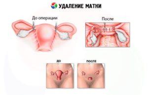 Климакс после удаления матки
