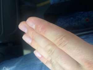 Трещины на сгибах пальцев рук