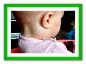 Увеличены лимфоузлы у ребенка
