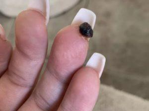 После салонного маникюра болит палец