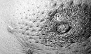 Морщиниться кожа ореола соска