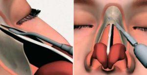 Плохо дышит нос после септопластики