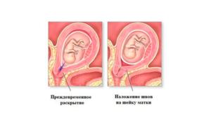 Прорезывание швов на шейке матки при беременности