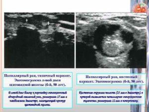 Определение рака щитовидной железы по УЗИ