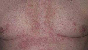 Красные пятна на груди при кормлении