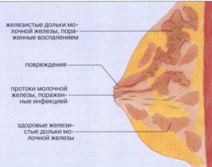 Комки в груди при грудном вскармливании