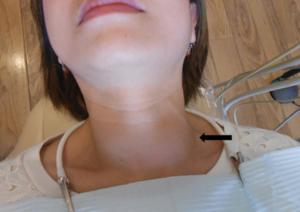 Щитовидная железа и увеличение лимфоузлов