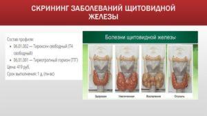 Скрининг щитовидной железы