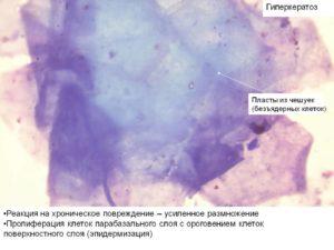 Безъядерные клетки плоского эпителия