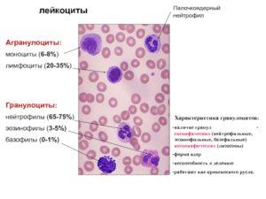 Отсутствие в крови базофилов и эозинофилов