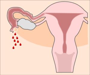 Нет менструаций после Регивидона