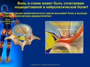 Нейропатическая боль и грыжа позвоночника
