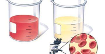 Эритроциты в моче, микрогематурия у ребенка