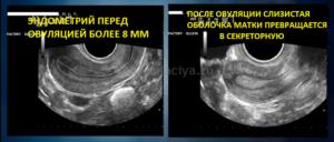 После овуляции эндометрий уменьшился