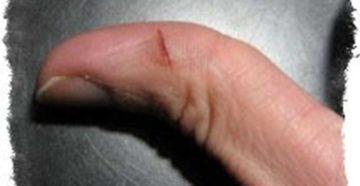 Глубокая рана между пальцами