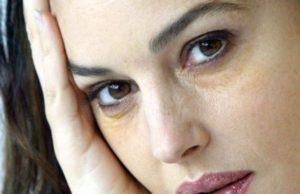 Синяки под глазами и бледный цвет лица