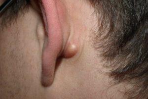 Плотное образование за мочкой уха