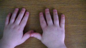Опух пальчик у ребенка